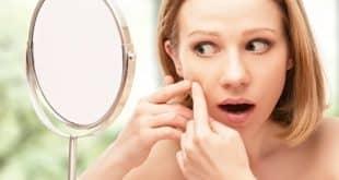 Akne Hausmittel – reine Haut mit einfachen Mitteln