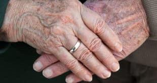 Altersflecken Hausmittel – ohne Flecken alt werden